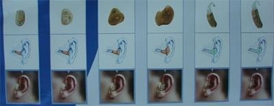 Fül mögötti, hallójárati, mély hallójárati hallókészülékek
